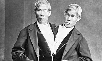 Chang and Eng -- Siamese Twins